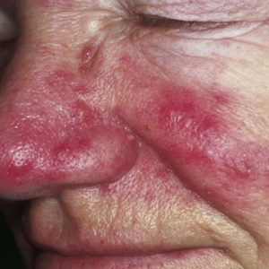 Rosacea Causes, Symptoms and Treatment