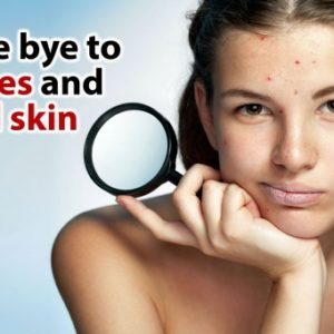 Home Remedies for Pimples, Zits and Acne