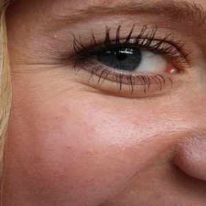 How to Get Rid of Eye Wrinkles