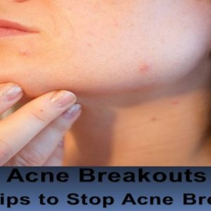 Acne Breakouts - Quick Tips to Stop Acne Breakouts