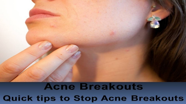 Acne Breakouts