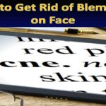 <sp />How to Get Rid of Blemishes on Face</span>