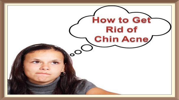 How to Get Rid of Chin and Neck Acne