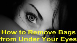 How to Get Rid of Eye Bags Permanently