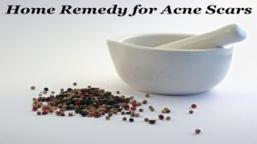 <sp />Home Remedy for Acne Scars</span>