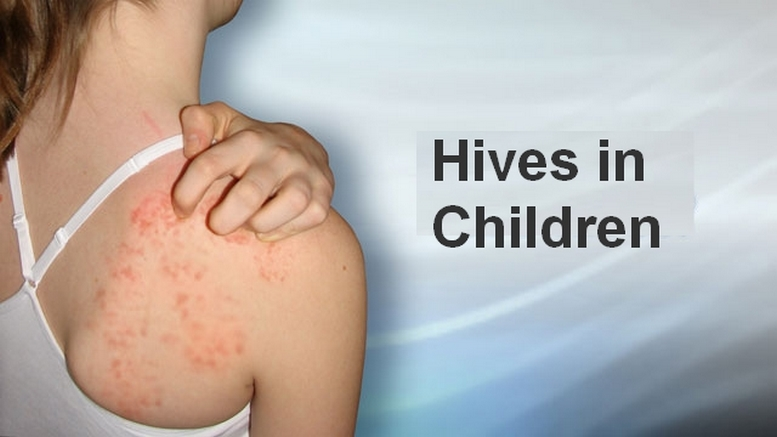 Hives in Children